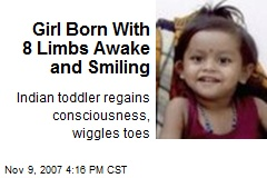 Girl Born With 8 Limbs Awake and Smiling