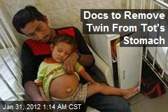 Docs to Remove Twin From Tot's Stomach