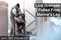 Live Grenade Pulled From Marine&amp;#39;s Leg