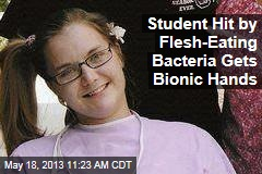 Student Hit by Flesh-Eating Bacteria Gets Bionic Hands