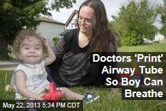 Doctors &amp;#39;Print&amp;#39; Airway Tube So Boy Can Breathe
