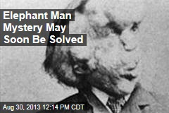 Elephant Man Mystery May Soon Be Solved