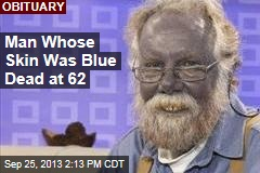 Man Whose Skin Was Blue Dead at 62