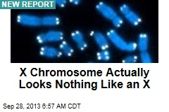 X Chromosome Actually Looks Nothing Like an X