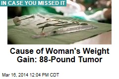 Cause of Woman's Weight Gain: 88-Pound Tumor