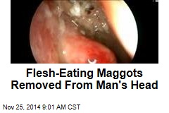 Flesh-Eating Maggots Removed From Man's Head