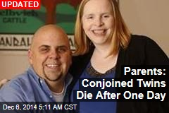 Parents: Conjoined Twins Die After One Day