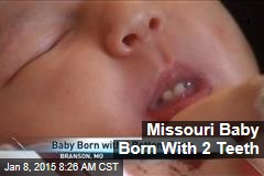 Missouri Baby Born With 2 Teeth