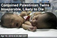 Conjoined Palestinian Twins Inseparable, Likely to Die